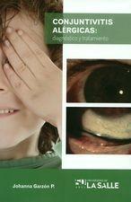 Conjuntivitis alérgicas: diagnóstico y tratamiento