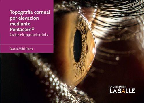 Topografía corneal por...